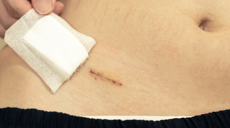 appendix surgical wound after suture